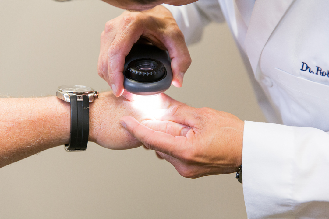Got Warts? When to See Your Dermatologist for Treatment