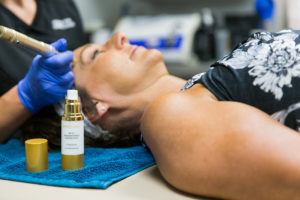 Picture of a patient receiving a microneedling procedure.