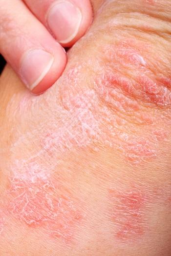 How to Minimize Eczema Symptoms & Outbreaks