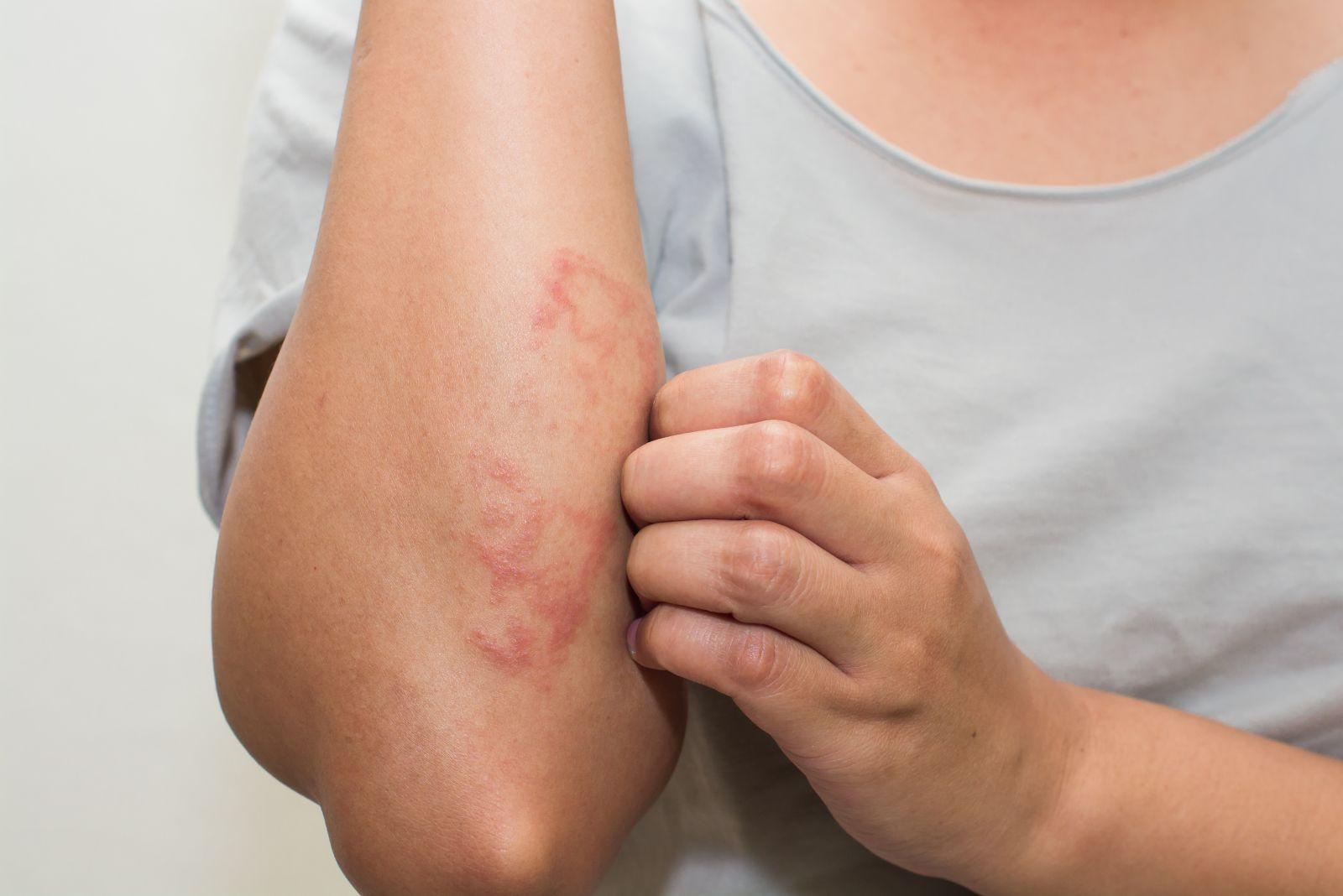 7 Types of Eczema