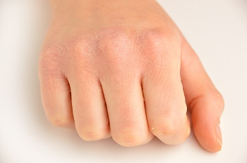 How to Prevent Chapped Hands