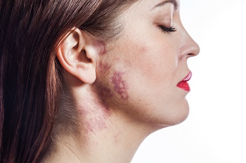 What You Should Know About Birthmarks