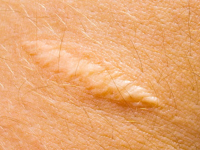 Diminishing Scars: Professional Cosmetic Treatment for an Improved Appearance