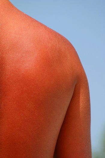 How to Treat a Painful Sunburn