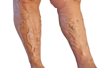 Diminish Unwanted Varicose Veins with Sclerotherapy