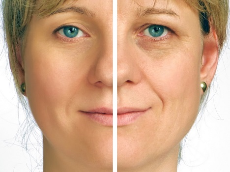Wrinkle Prevention: Minimize Fine Lines and Maximize Your Youthfulness