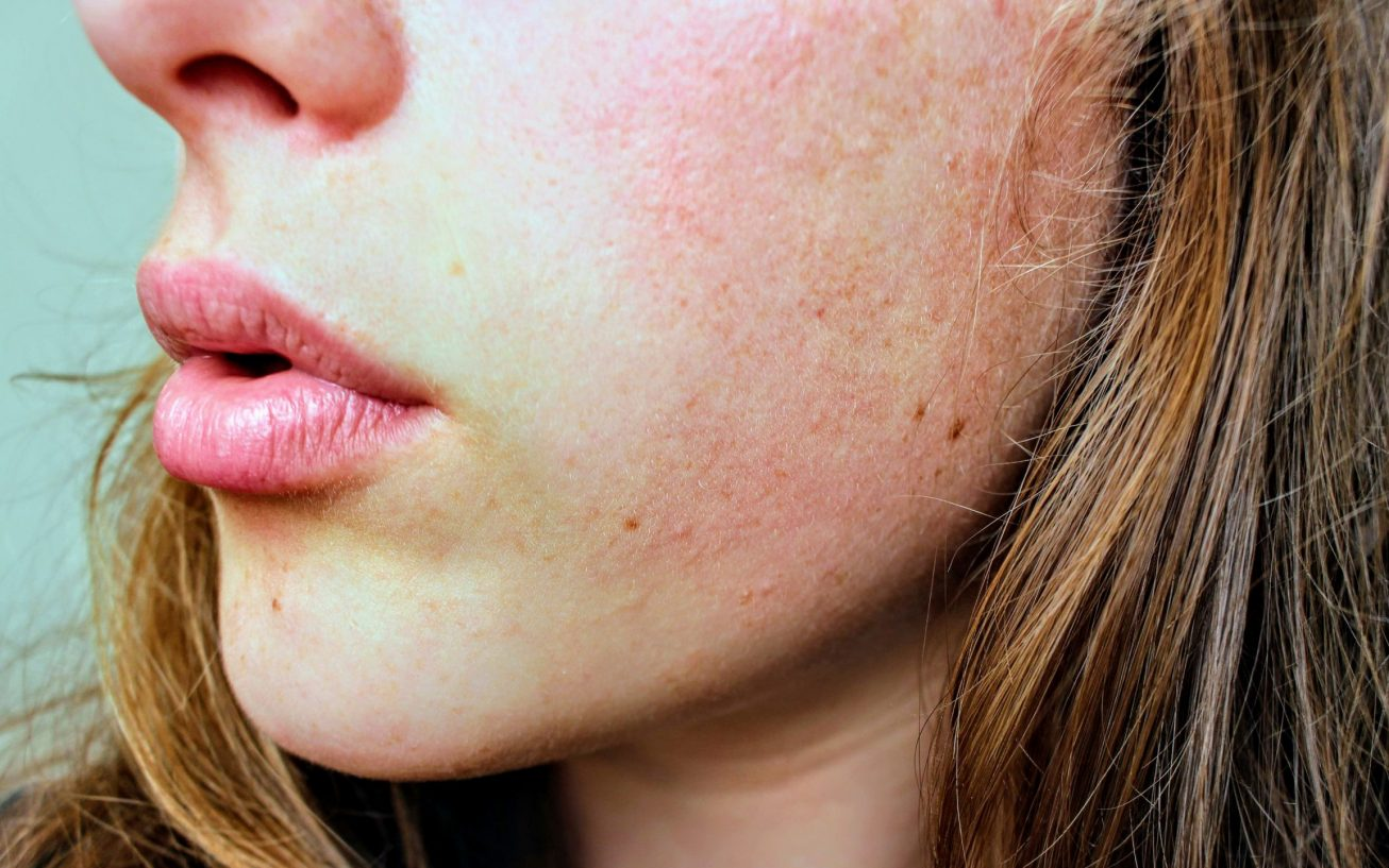 3 Steps To Prevent Dry Skin In Freezing Weather