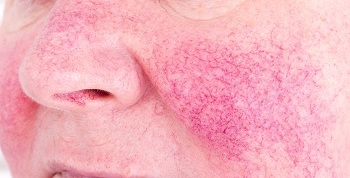 5 Tips For Managing Your Rosacea